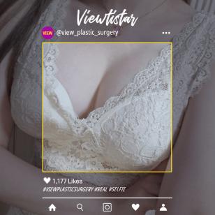[Breast Augmentation] Park Yu-ri