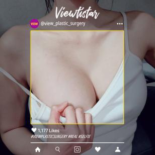 [Breast Augmentation] Jennie