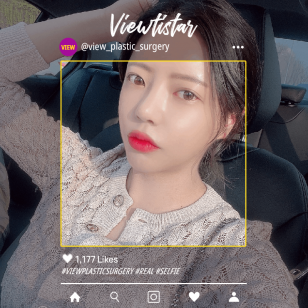 [3 types of contour, nose revision surgery, under-eye fat repositioning] Kim Ye-seul