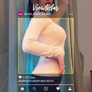 [Breast Augmentation] Oh Na-eun