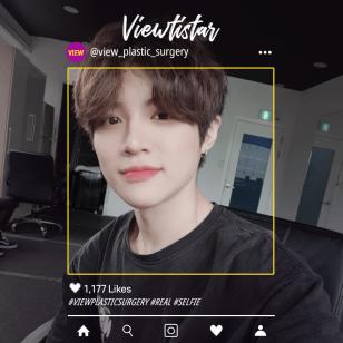 [3 types of contouring, eye surgery] Minwoo Choi