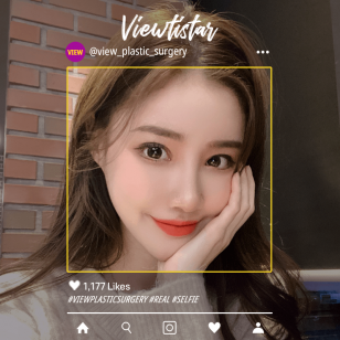 [3 types of contouring, revision eye surgery] Gayoung Park